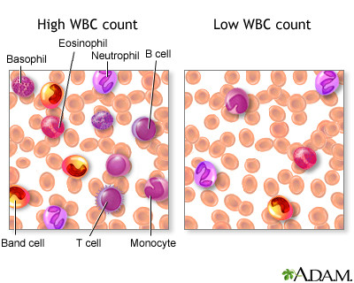 White blood cell count - series: MedlinePlus Medical Encyclopedia