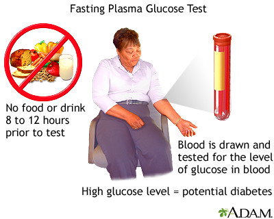 Fasting glucose tolerance test: MedlinePlus Medical Encyclopedia Image