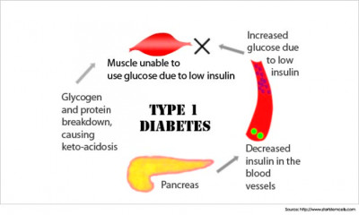 Causes of Diabetes: Pg3(Symptoms, Treatments and Videos) - Seekers Match