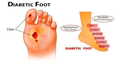 Caring For Diabetic Feet | - SUPPORTING FAMILY AND CAREGIVERS