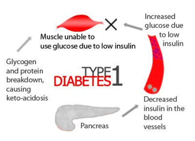 Type 1 diabetes is an autoimmune disease that results from T cell ...