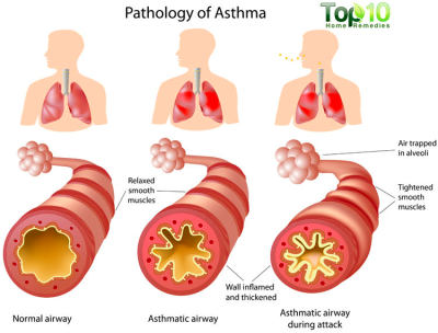 Home Remedies for Asthma | Top 10 Home Remedies