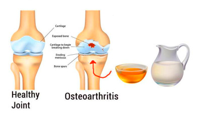 Home Remedies for Osteoarthritis | Top 10 Home Remedies