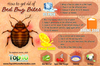 How to Get Rid of Bed Bug Bites - Page 3 of 3 | Top 10 Home Remedies