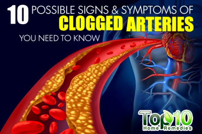 10 Possible Signs and Symptoms of Clogged Arteries You Need to Know - Page 2 of 3 | Top 10 Home ...