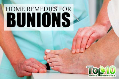 Home Remedies for Bunions - Page 3 of 3 | Top 10 Home Remedies