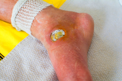 Why You Shouldn't Ignore a Wound That Won't Heal – Health Essentials from Cleveland Clinic