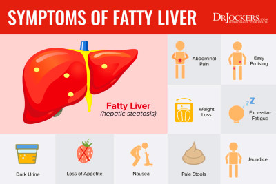 12 Strategies to Heal Fatty Liver Naturally - DrJockers.com