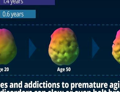 Largest brain study of 62,454 scans identifies drivers of ...