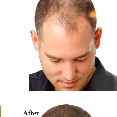 Hair Growth Products Natural With No Side Effects Faster ...