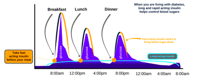 Why do I need insulin at mealtime?
