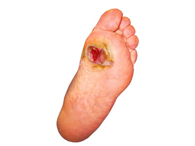 Peripheral Neuropathy and Diabetic Foot Ulcers | Brucelashleydpm's ...