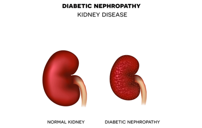 How Does Diabetes Affect Your Kidneys