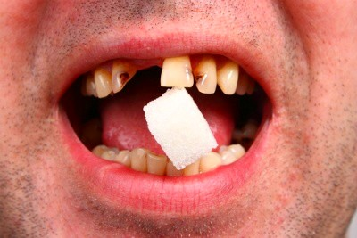 Does Cutting Back on Sugar in Your Diet Help Your Oral ...
