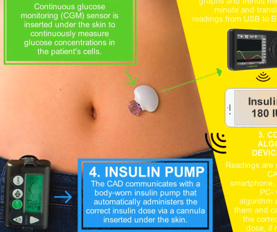 How Technology is Changing Diabetes Care and Treatment