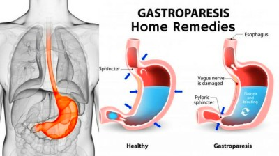 Home Remedies to Get Rid of Gastroparesis