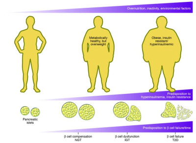 Prevalence of Obesity Among Type 2 Diabetes Patients ...