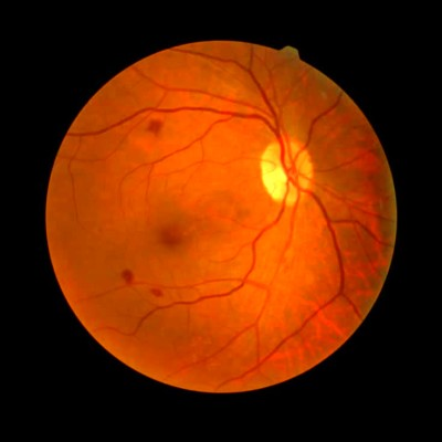 Diabetic Retinopathy Prevention & Management: 12 Natural ...