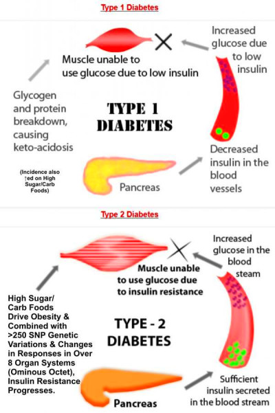 ... diabetes typ 1 and type2 .i need this information for writing test