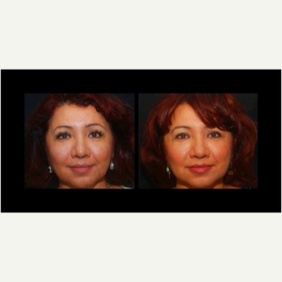 Liquid Facelift Before & After Pictures - RealSelf
