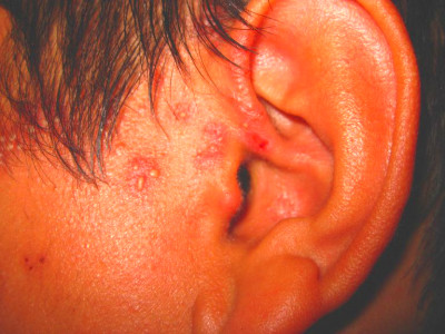 Early Signs and Symptoms of Shingles (Herpes Zoster)