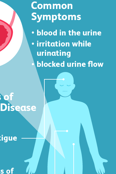 Signs and Symptoms of Bladder Cancer