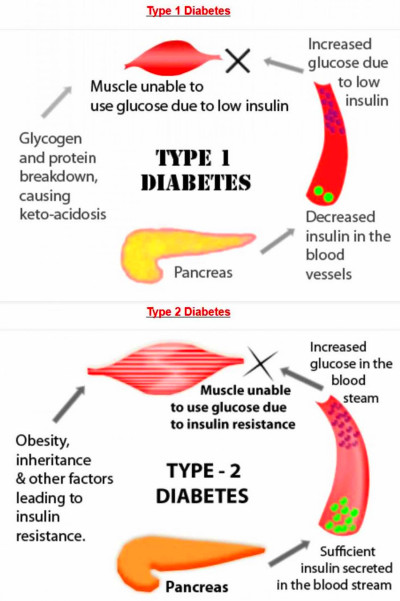 What is type 2 Diabetes - Symptoms, Treatment & Diet for ...