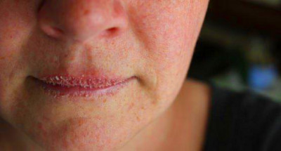 Crusty Lips - How to Get Rid, Symptoms, Causes, Remedies ...