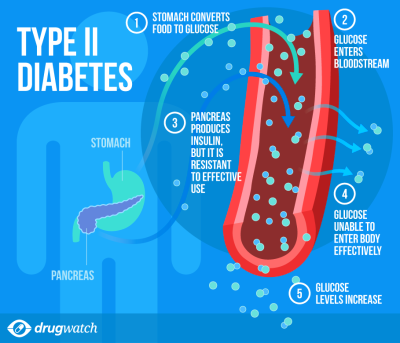 Precisely what are The Symptoms of Diabetes mellitus type ...