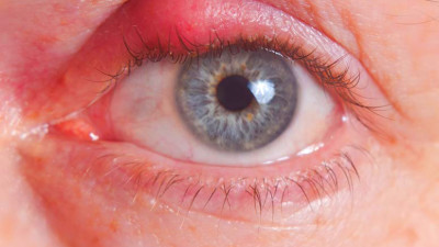 6 Surprising Home Remedies for Eye Infection 'Stye'Health ...