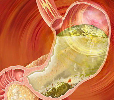 Diabetic Gastroparesis Symptoms, Diet and Treatment ...