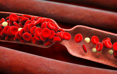 6 Signs You Might Have A Blood Clot | Prevention