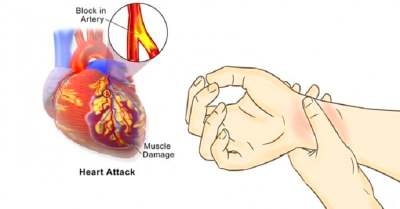 80% OF HEART ATTACKS COULD BE AVOIDED IF EVERYONE DID ...