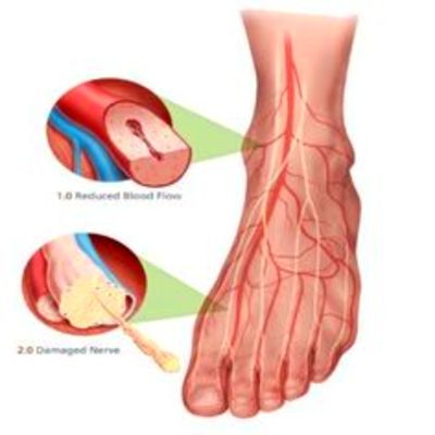 159 Best Neuropathy images in 2018   Peripheral neuropathy ...