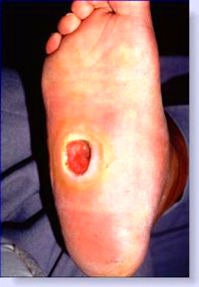 diabetic ulcer pictures   Foot ulcers/ Wound care- CPD ...