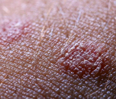 Diabetic Skin Conditions #1 - Acanthosis nigricans ...