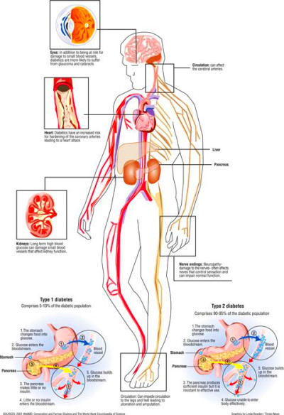 Diagram on how diabetes affects the body. | Graphics | Diabetes, Diagram, Exercise