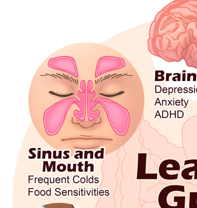 Leaky Gut Diet and Treatment Plan, Including Top Gut Foods ...