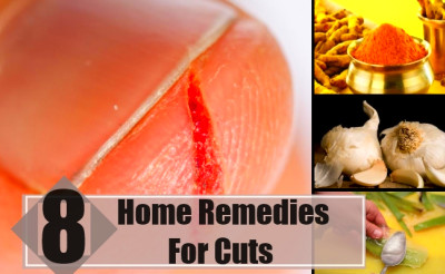 Best Home Remedies For Cuts - Natural Treatments & Cure For Cuts | Find Home Remedy & Supplements