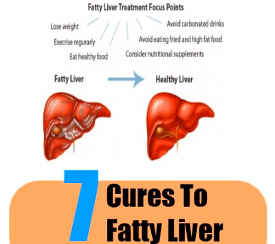 7 Natural Cures For Fatty Liver - How To Cure Fatty Liver ...