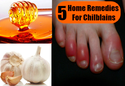 5 Chilblains Home Remedies, Natural Treatments & Cures | Herbal Supplements