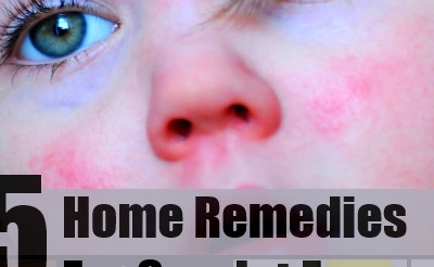 5 Scarlet Fever Home Remedies, Natural Treatments And Cure ...
