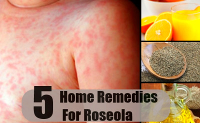 5 Roseola Home Remedies, Natural Treatments And Cure ...