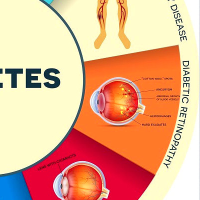 Diabetes Prevention Made Simple With These 6 Tips, Foods ...