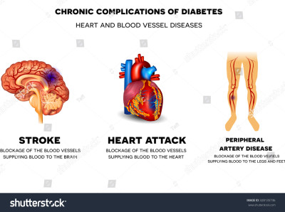 Chronic Complications Diabetes Heart Blood Vessel Stock Illustration 328135736 - Shutterstock