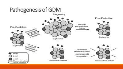 Pathogenesis and Complications of Gestational Diabetes ...