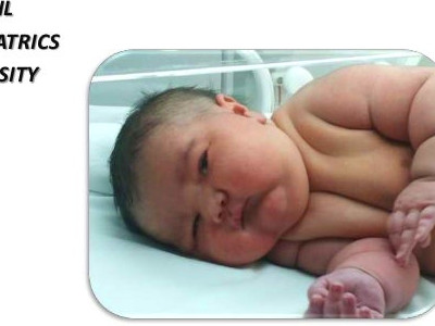 Infant of diabetic mother
