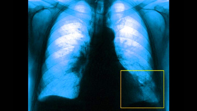 10 Questions to Ask Your Doctor About Pulmonary Embolism | Everyday Health