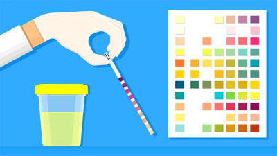 Ketones in Urine Test: What It Measures and What Results ...