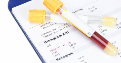 What Are the Normal A1c Levels for Children? | LIVESTRONG.COM